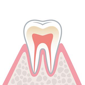 C0…歯に穴が空いてない状態のむし歯