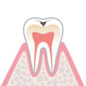 C1…エナメル質に穴が空いているむし歯