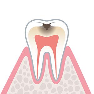 C2…エナメル質の下にある象牙質まで進行したむし歯