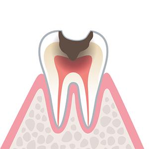C3…歯の神経(歯髄)まで達しているむし歯