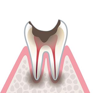 C4…歯根まで到達したむし歯